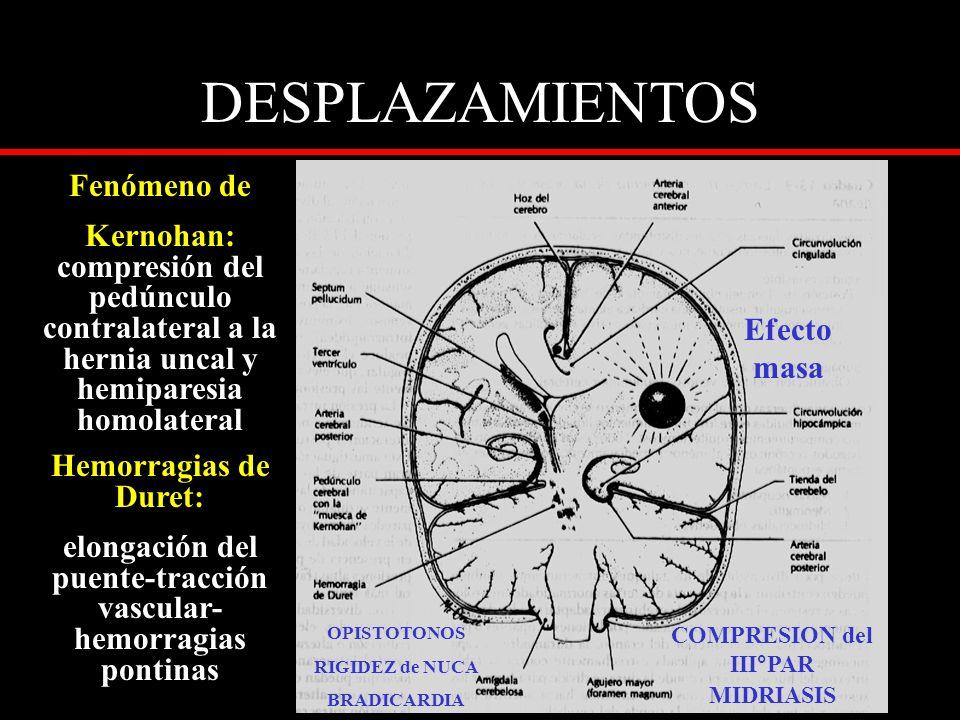 DESPLAZAMIENTOS Fenómeno de Kernohan: compresión del pedúnculo contralateral a la hernia uncal y hemiparesia homolateral Hemorragias de Duret: elongac