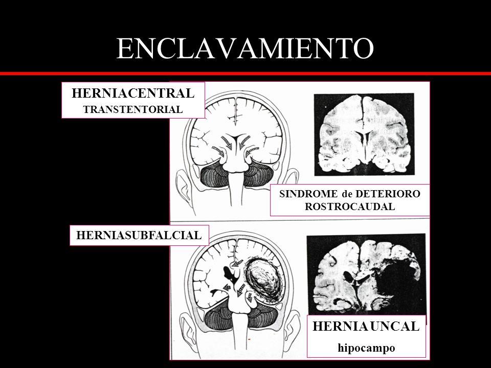 ENCLAVAMIENTO HERNIACENTRAL TRANSTENTORIAL SINDROME de DETERIORO ROSTROCAUDAL HERNIA UNCAL hipocampo HERNIASUBFALCIAL