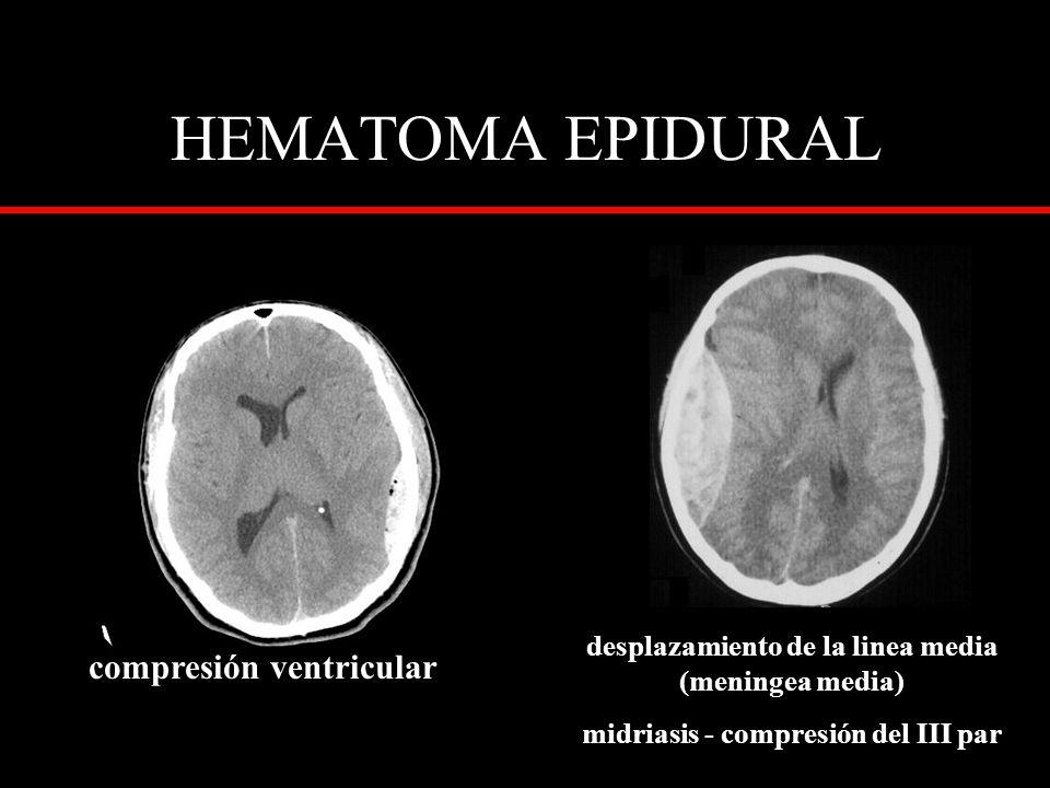 desplazamiento de la linea media (meningea media) midriasis - compresión del III par compresión ventricular