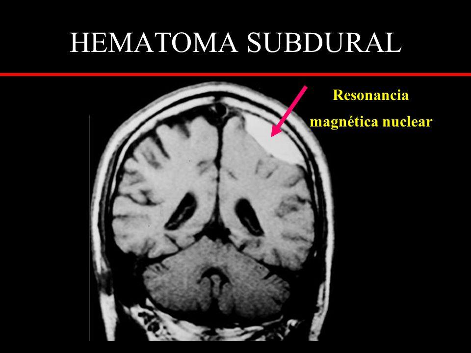 HEMATOMA SUBDURAL Resonancia magnética nuclear