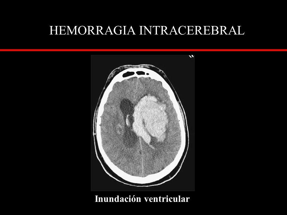 HEMORRAGIA INTRACEREBRAL Inundación ventricular