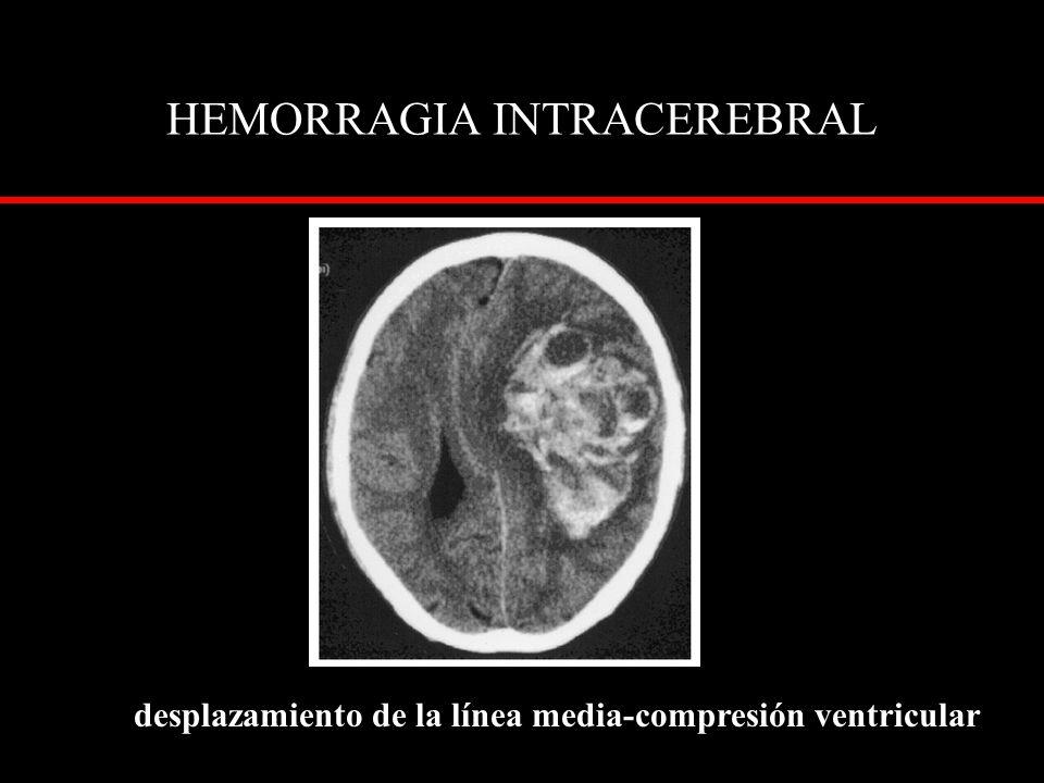 HEMORRAGIA INTRACEREBRAL desplazamiento de la línea media-compresión ventricular