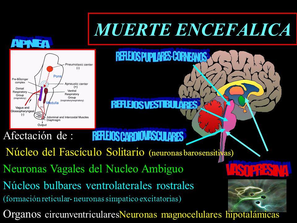MUERTE ENCEFALICA Afectación de : Núcleo del Fascículo Solitario (neuronas barosensitivas) Neuronas Vagales del Nucleo Ambiguo Núcleos bulbares ventro