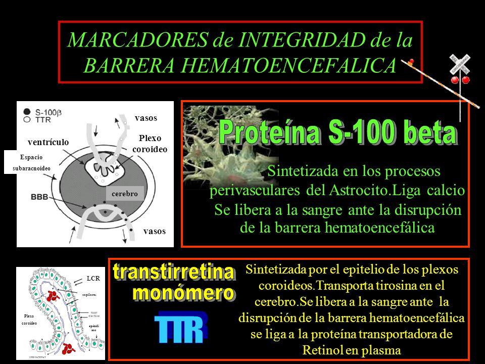 vasos Plexo coroideo ventrículo Espacio subaracnoideo cerebro MARCADORES de INTEGRIDAD de la BARRERA HEMATOENCEFALICA Plexo coroideo LCR capilares epé