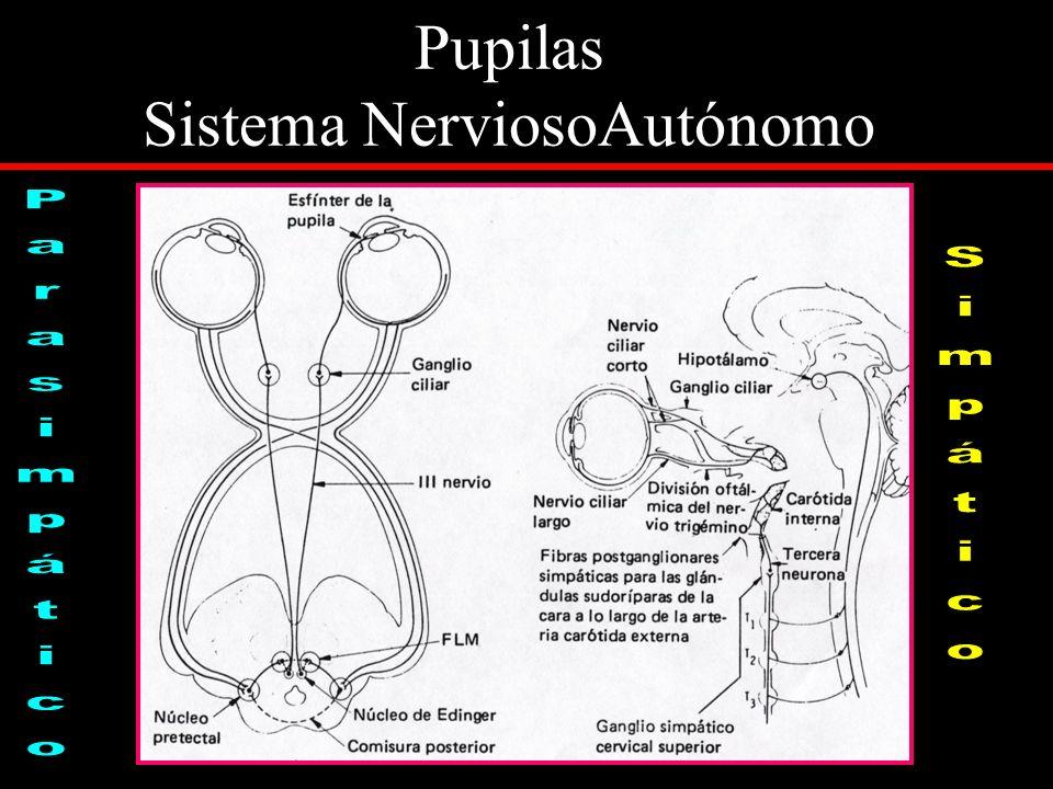 PUPILAS en el COMA Tamaño Pupilar Normal 2 - 4 mm miosis midriasis