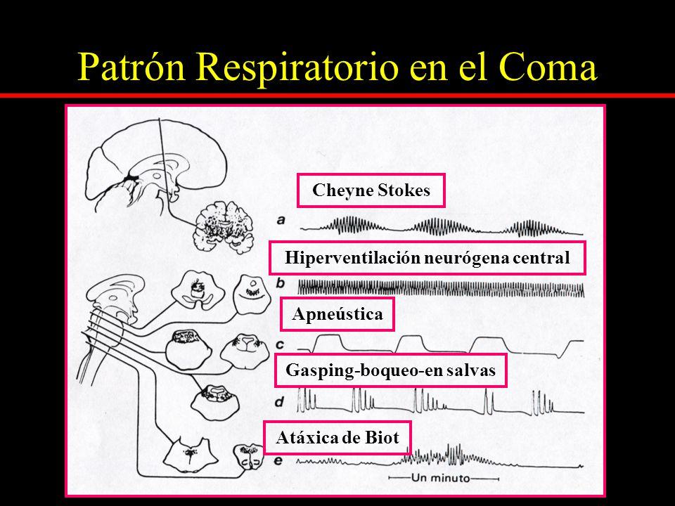 ESTADOS de DISFUNCION NEUROLÓGICA Puede despertar solo Ciclos de sueño- vigilia conservados Actividad voluntaria muy pobre Movimientos sin propósito Experiencias de sufrimiento Flaccidez Lesiones (prosencefálicas diencefálicas) fronto medial bilateral (hiperpatético) proyecciones cortico -límbicas reticulo – corticales Mesencefalo ( apatético o somnoliento) Lesiones (prosencefálicas diencefálicas) fronto medial bilateral (hiperpatético) proyecciones cortico -límbicas reticulo – corticales Mesencefalo ( apatético o somnoliento)