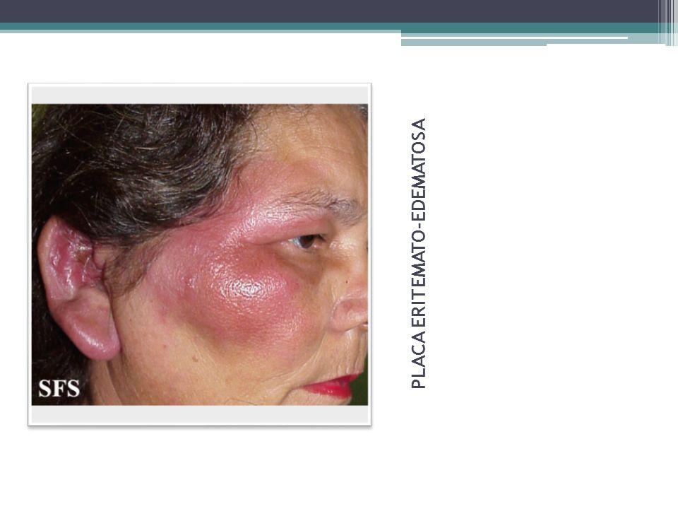 Tratamiento Local: lesiones superficiales y escasas Descostrado con scn antiséptica y colocación posterior de ATB tópicos Sistémico: lesiones múltiples o extensión del proceso en profundidad.