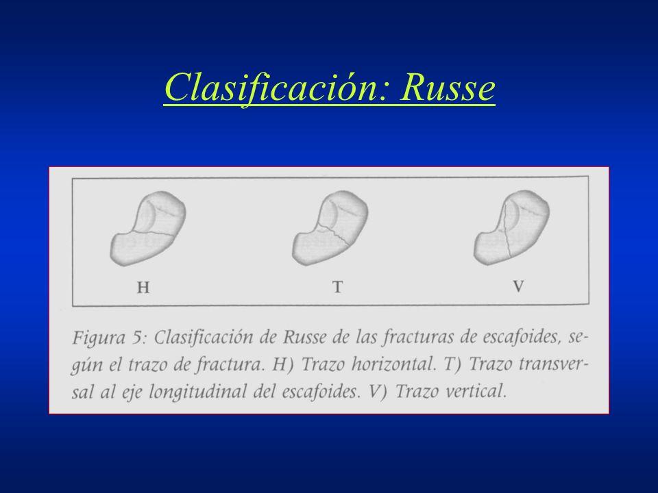 Clasificación: Russe