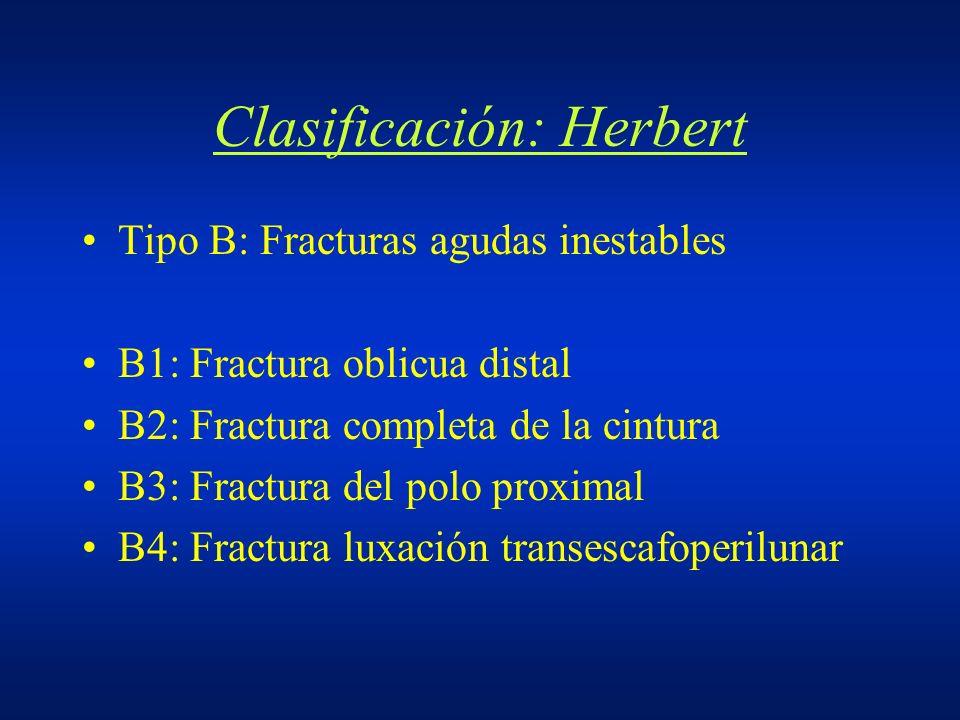 Clasificación: Herbert Tipo B: Fracturas agudas inestables B1: Fractura oblicua distal B2: Fractura completa de la cintura B3: Fractura del polo proxi