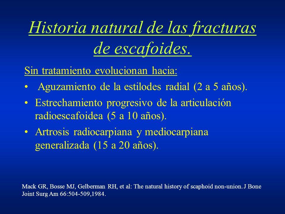 Historia natural de las fracturas de escafoides. Sin tratamiento evolucionan hacia: Aguzamiento de la estilodes radial (2 a 5 años). Estrechamiento pr
