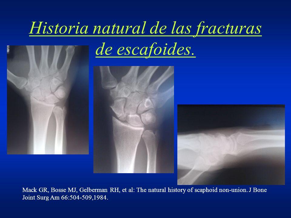 Historia natural de las fracturas de escafoides. Mack GR, Bosse MJ, Gelberman RH, et al: The natural history of scaphoid non-union. J Bone Joint Surg