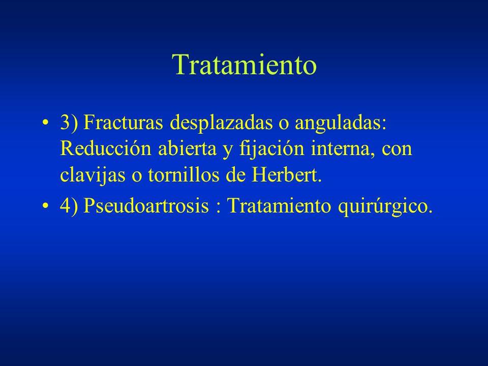 Tratamiento 3) Fracturas desplazadas o anguladas: Reducción abierta y fijación interna, con clavijas o tornillos de Herbert. 4) Pseudoartrosis : Trata