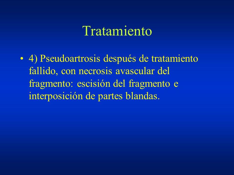 Tratamiento 4) Pseudoartrosis después de tratamiento fallido, con necrosis avascular del fragmento: escisión del fragmento e interposición de partes b