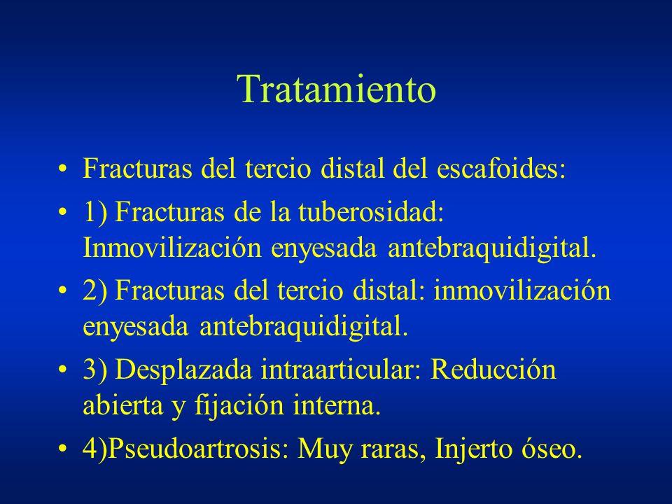 Tratamiento Fracturas del tercio distal del escafoides: 1) Fracturas de la tuberosidad: Inmovilización enyesada antebraquidigital. 2) Fracturas del te