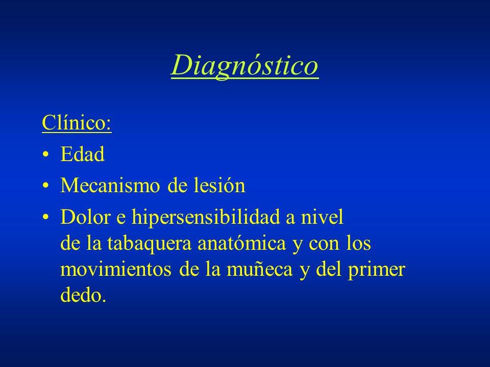 Diagnóstico Clínico: Edad Mecanismo de lesión Dolor e hipersensibilidad a nivel de la tabaquera anatómica y con los movimientos de la muñeca y del pri