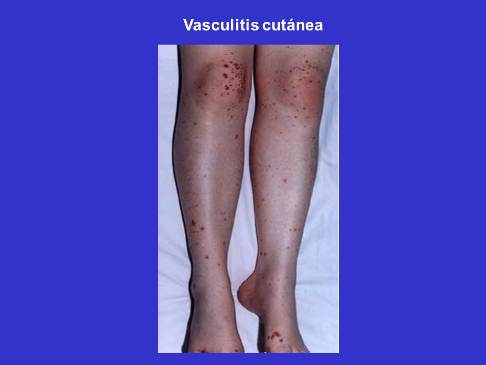 Vasculitis cutánea