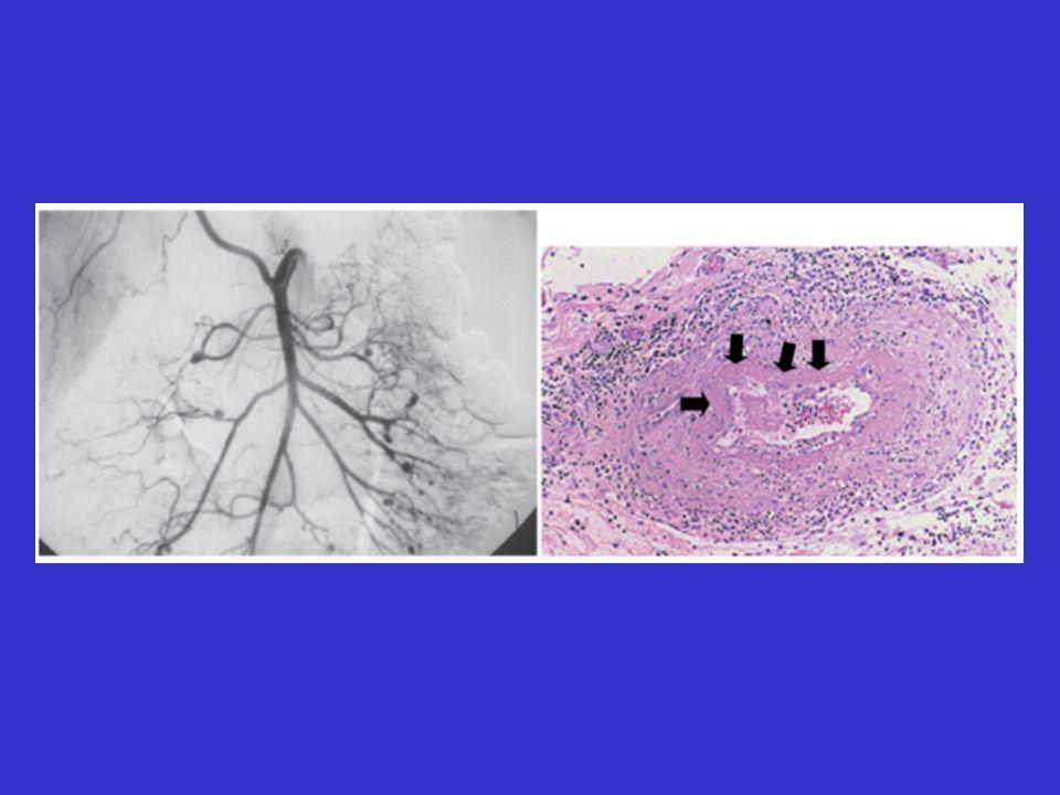 Arteritis de Células Gigantes Criterios Diagnósticos 3 de los siguientes 5 criterios: 93.5% de sensibilidad y 91.2% de especificidad 1.Edad 50 años 2.Cefaleas no habituales 3.Sensibilidad de la arteria temporal o pulso 4.