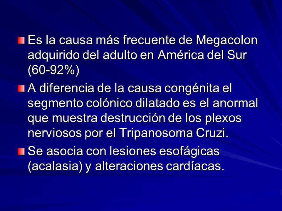 Es la causa más frecuente de Megacolon adquirido del adulto en América del Sur (60-92%) A diferencia de la causa congénita el segmento colónico dilatado es el anormal que muestra destrucción de los plexos nerviosos por el Tripanosoma Cruzi.