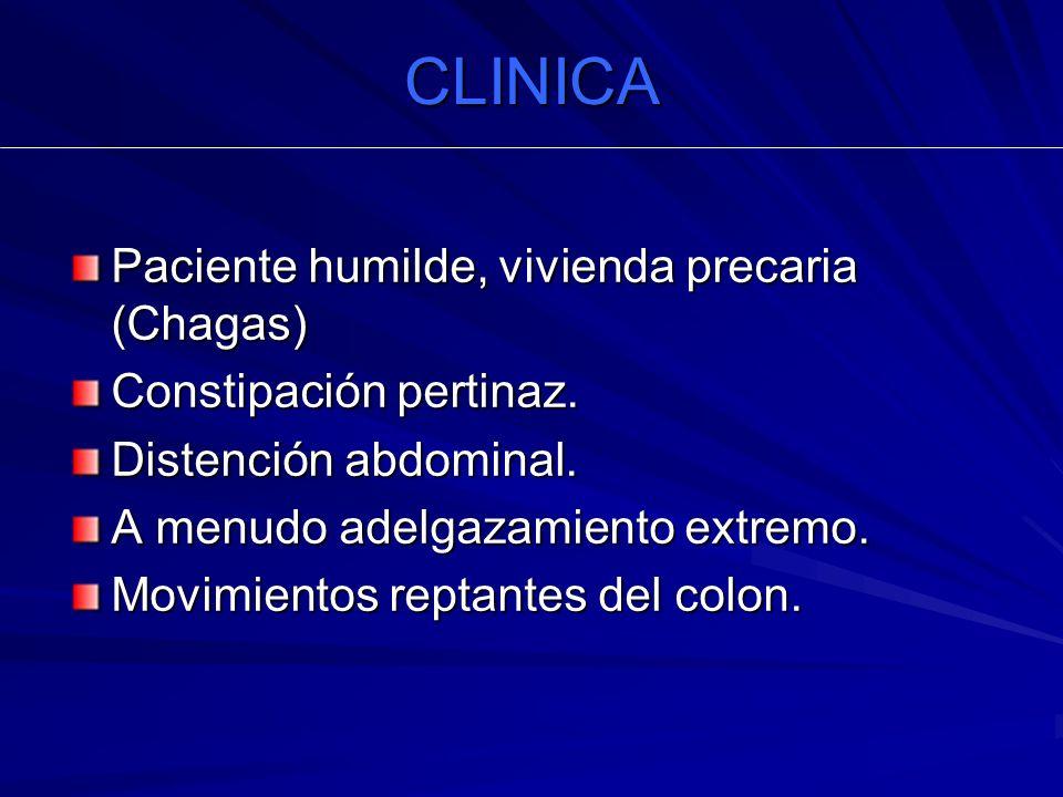 CLINICA Paciente humilde, vivienda precaria (Chagas) Constipación pertinaz. Distención abdominal. A menudo adelgazamiento extremo. Movimientos reptant