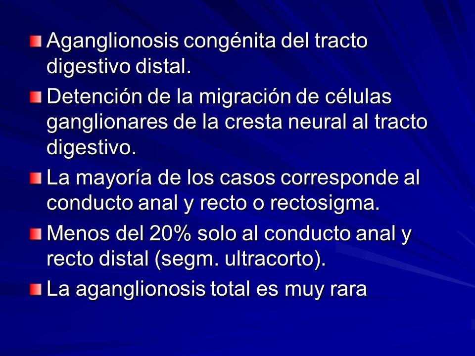 Aganglionosis congénita del tracto digestivo distal. Detención de la migración de células ganglionares de la cresta neural al tracto digestivo. La may