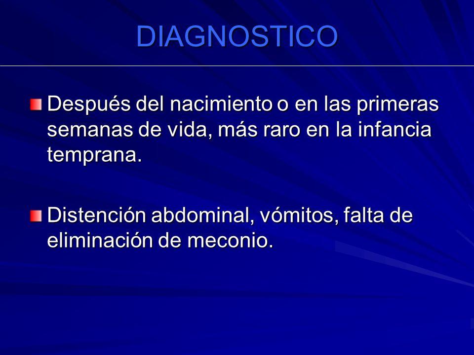 DIAGNOSTICO Después del nacimiento o en las primeras semanas de vida, más raro en la infancia temprana. Distención abdominal, vómitos, falta de elimin