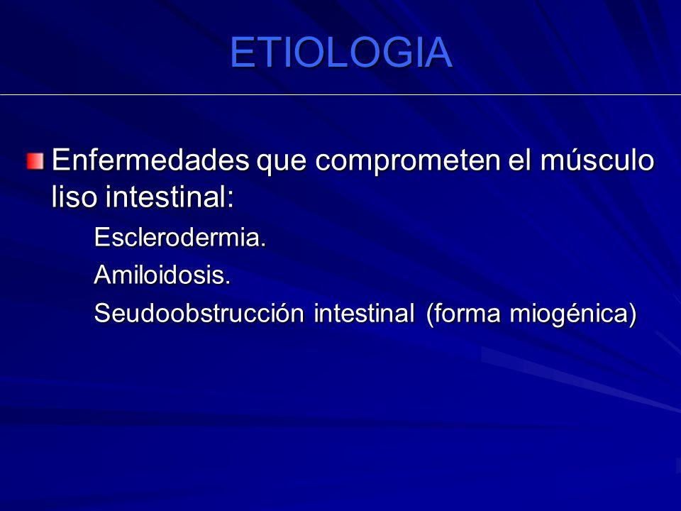 ETIOLOGIA Enfermedades que comprometen el músculo liso intestinal: Esclerodermia.Amiloidosis. Seudoobstrucción intestinal (forma miogénica)