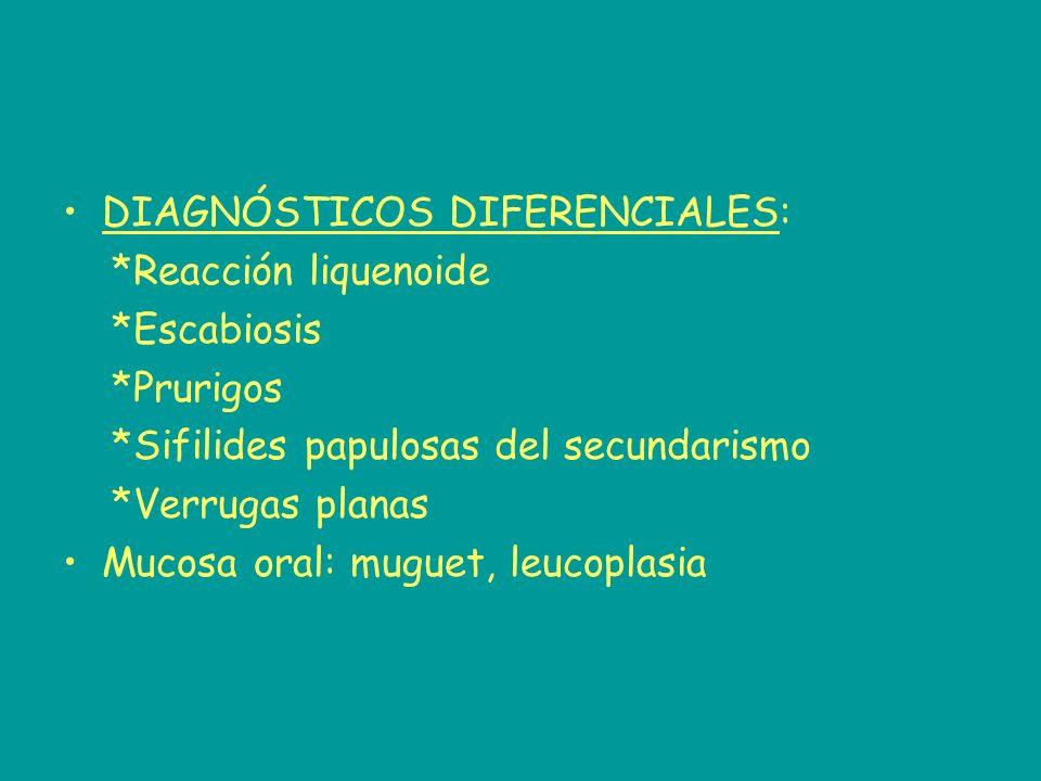 DIAGNÓSTICOS DIFERENCIALES: *Reacción liquenoide *Escabiosis *Prurigos *Sifilides papulosas del secundarismo *Verrugas planas Mucosa oral: muguet, leu