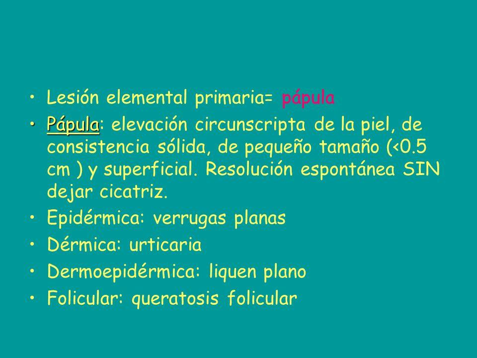 Lesión elemental primaria= pápula PápulaPápula: elevación circunscripta de la piel, de consistencia sólida, de pequeño tamaño (<0.5 cm ) y superficial