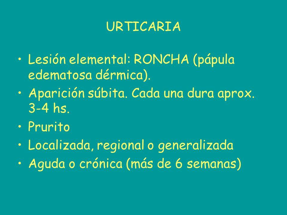 URTICARIA Lesión elemental: RONCHA (pápula edematosa dérmica). Aparición súbita. Cada una dura aprox. 3-4 hs. Prurito Localizada, regional o generaliz