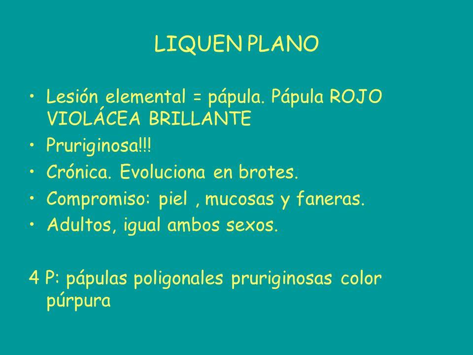 LIQUEN PLANO Lesión elemental = pápula. Pápula ROJO VIOLÁCEA BRILLANTE Pruriginosa!!! Crónica. Evoluciona en brotes. Compromiso: piel, mucosas y faner