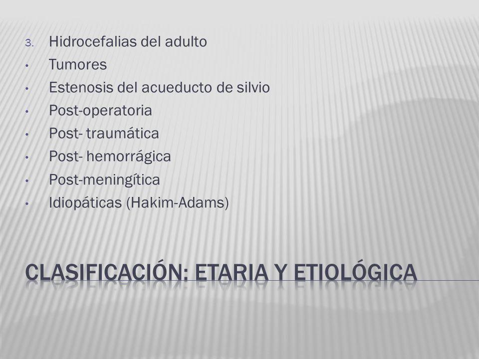 3. Hidrocefalias del adulto Tumores Estenosis del acueducto de silvio Post-operatoria Post- traumática Post- hemorrágica Post-meningítica Idiopáticas