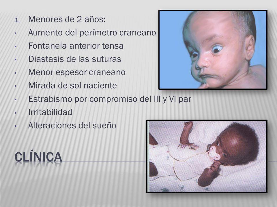 1. Menores de 2 años: Aumento del perímetro craneano Fontanela anterior tensa Diastasis de las suturas Menor espesor craneano Mirada de sol naciente E
