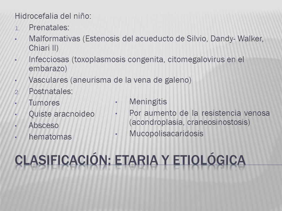 Hidrocefalia del niño: 1. Prenatales: Malformativas (Estenosis del acueducto de Silvio, Dandy- Walker, Chiari II) Infecciosas (toxoplasmosis congenita