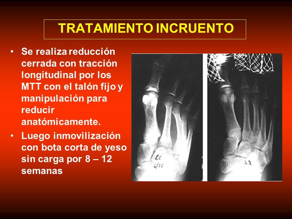 TRATAMIENTO INCRUENTO Se realiza reducción cerrada con tracción longitudinal por los MTT con el talón fijo y manipulación para reducir anatómicamente.