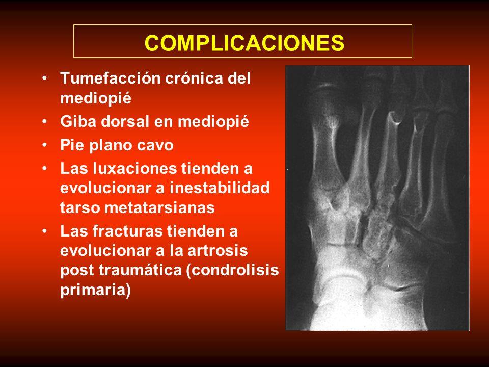 COMPLICACIONES Tumefacción crónica del mediopié Giba dorsal en mediopié Pie plano cavo Las luxaciones tienden a evolucionar a inestabilidad tarso meta