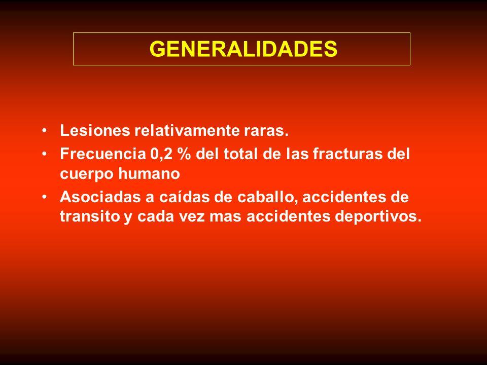 GENERALIDADES Lesiones relativamente raras. Frecuencia 0,2 % del total de las fracturas del cuerpo humano Asociadas a caídas de caballo, accidentes de