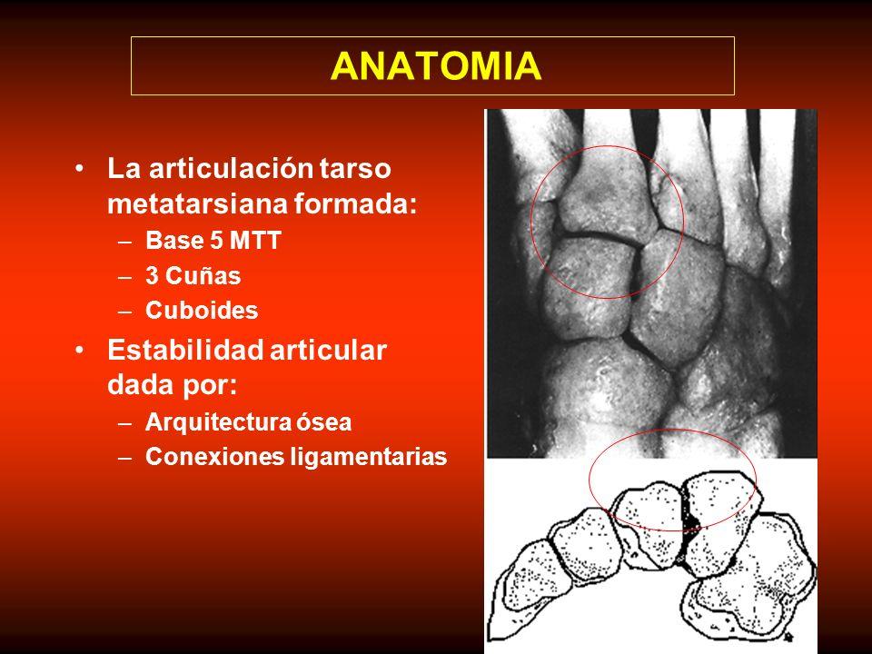 ANATOMIA La articulación tarso metatarsiana formada: –Base 5 MTT –3 Cuñas –Cuboides Estabilidad articular dada por: –Arquitectura ósea –Conexiones ligamentarias