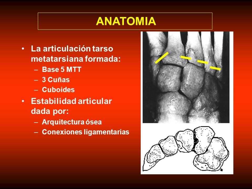 Mecanismo Directo: –Fuerza aplicada sobre el dorso de pie que puede provocar lesiones de partes blandas además de luxo fracturas.