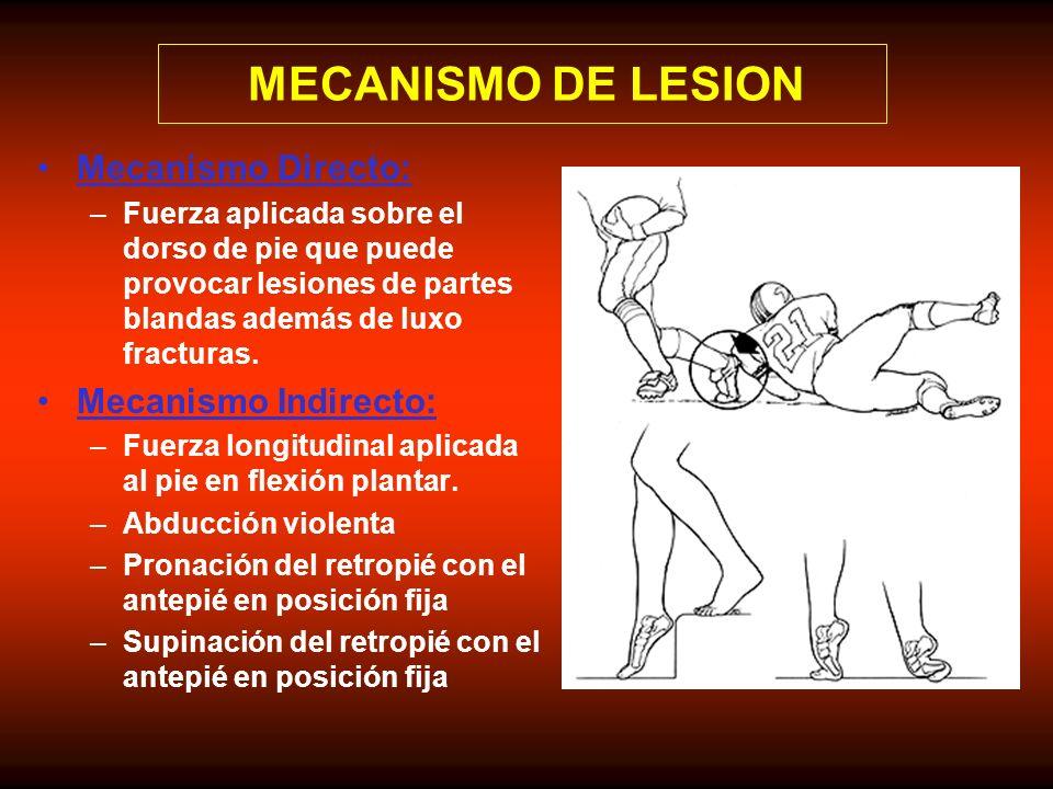 Mecanismo Directo: –Fuerza aplicada sobre el dorso de pie que puede provocar lesiones de partes blandas además de luxo fracturas. Mecanismo Indirecto: