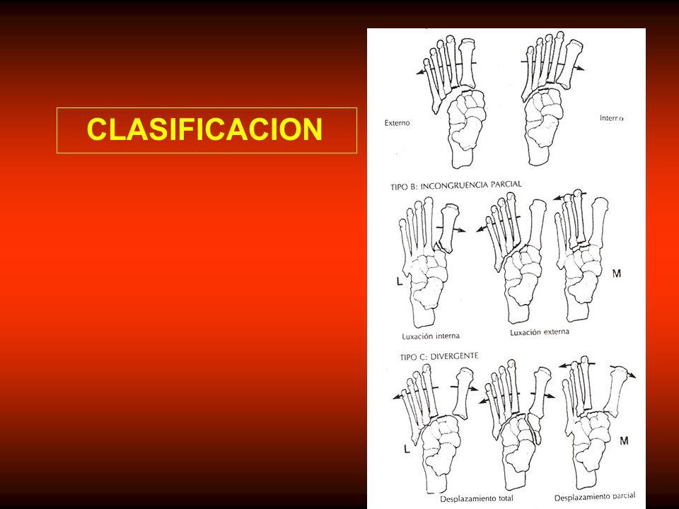 CUADRO CLINICO Las luxaciones mayores son diagnosticadas fácilmente pero las menores pasan inadvertidas con frecuencia (20%) como por ejemplo en pacientes politraumatizados, en luxaciones que reducen espontáneamente y en lesiones imperceptibles.