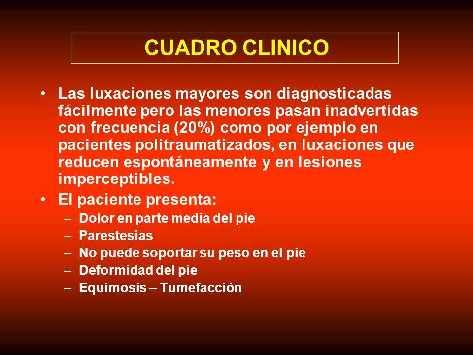 CUADRO CLINICO Las luxaciones mayores son diagnosticadas fácilmente pero las menores pasan inadvertidas con frecuencia (20%) como por ejemplo en pacie