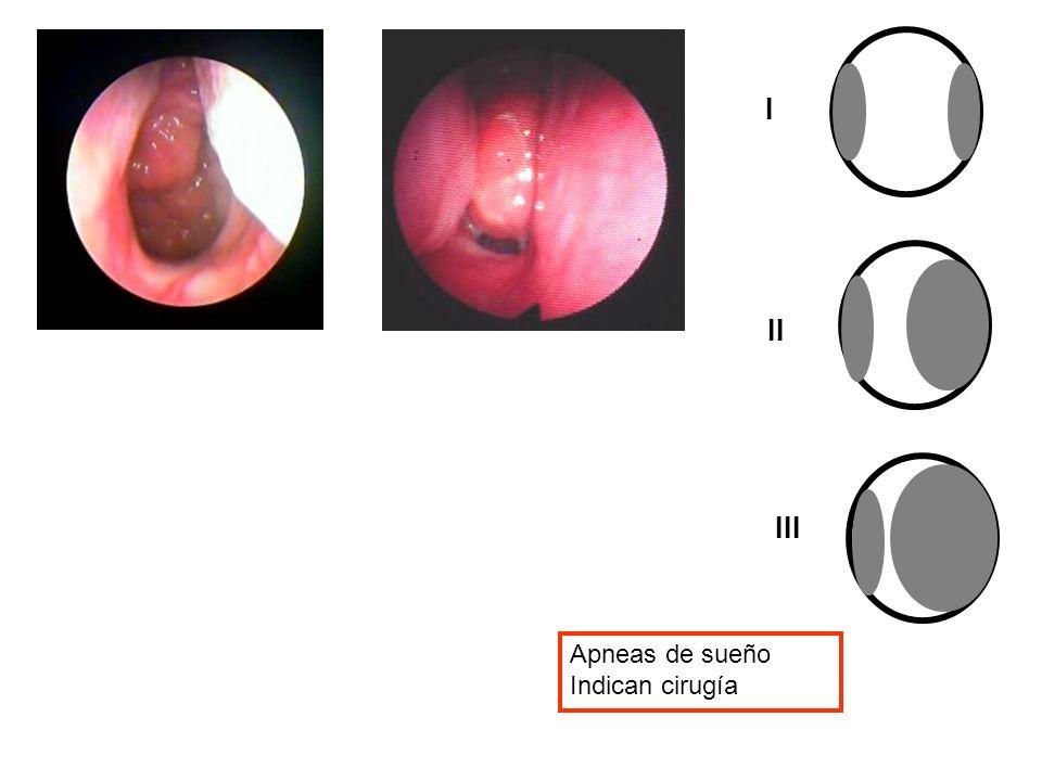 I II III Apneas de sueño Indican cirugía