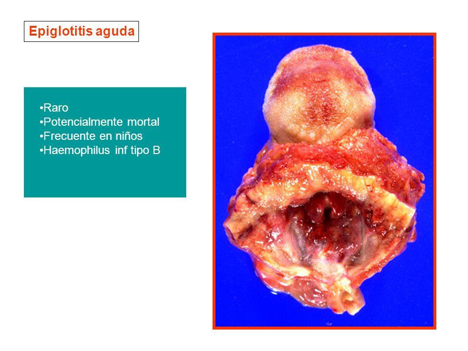 Epiglotitis aguda Raro Potencialmente mortal Frecuente en niños Haemophilus inf tipo B