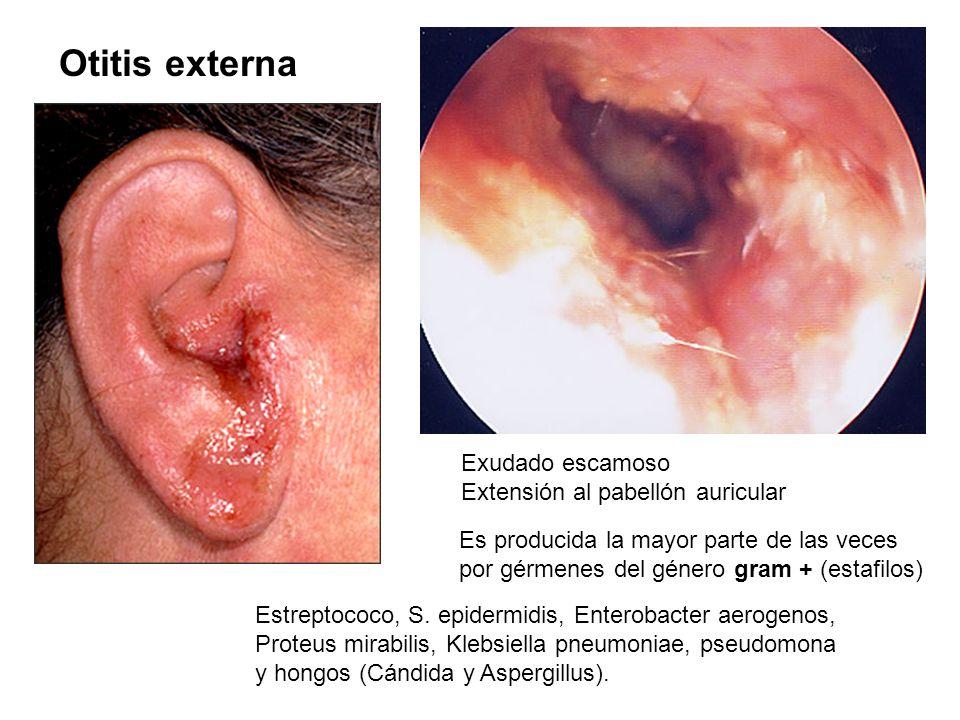 Otitis externa Exudado escamoso Extensión al pabellón auricular Es producida la mayor parte de las veces por gérmenes del género gram + (estafilos) Es