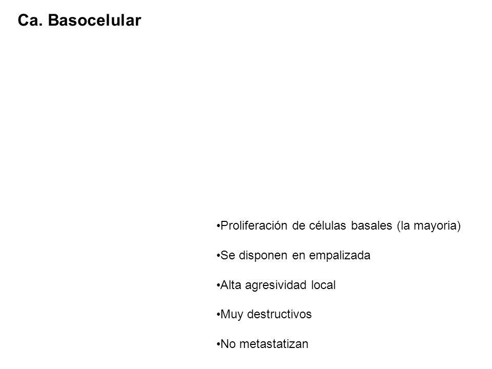 Proliferación de células basales (la mayoria) Se disponen en empalizada Alta agresividad local Muy destructivos No metastatizan Ca. Basocelular