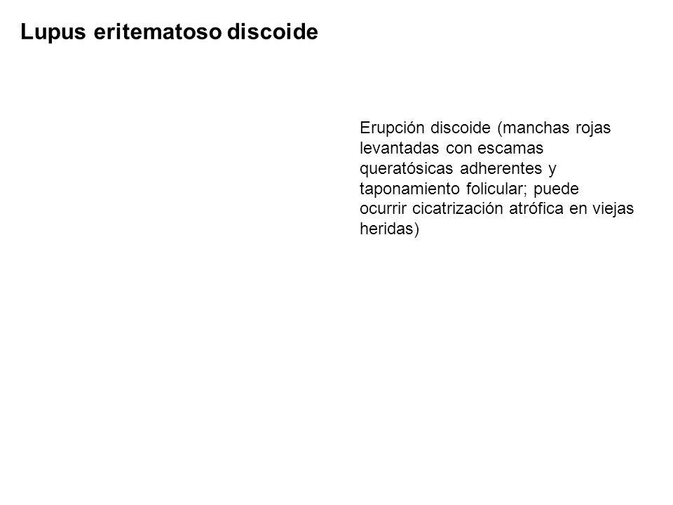 Lupus eritematoso discoide Erupción discoide (manchas rojas levantadas con escamas queratósicas adherentes y taponamiento folicular; puede ocurrir cic