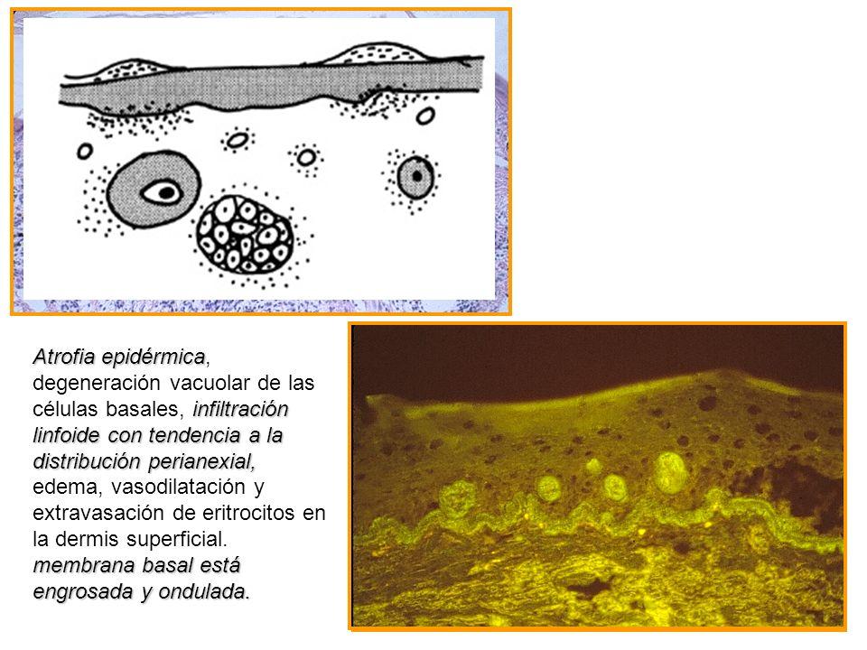 Atrofia epidérmica infiltración linfoide con tendencia a la distribución perianexial, membrana basal está engrosada y ondulada. Atrofia epidérmica, de