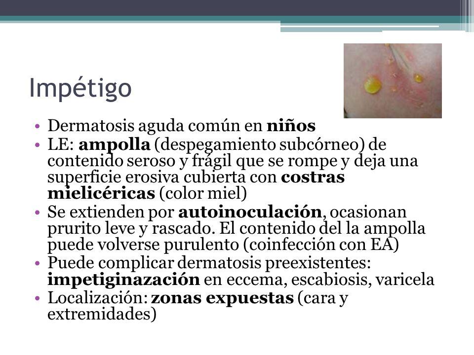 Impétigo Dermatosis aguda común en niños LE: ampolla (despegamiento subcórneo) de contenido seroso y frágil que se rompe y deja una superficie erosiva