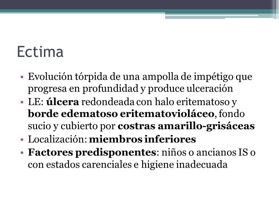 Ectima Evolución tórpida de una ampolla de impétigo que progresa en profundidad y produce ulceración LE: úlcera redondeada con halo eritematoso y bord