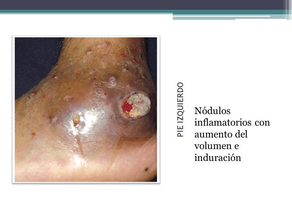 PIE IZQUIERDO Nódulos inflamatorios con aumento del volumen e induración